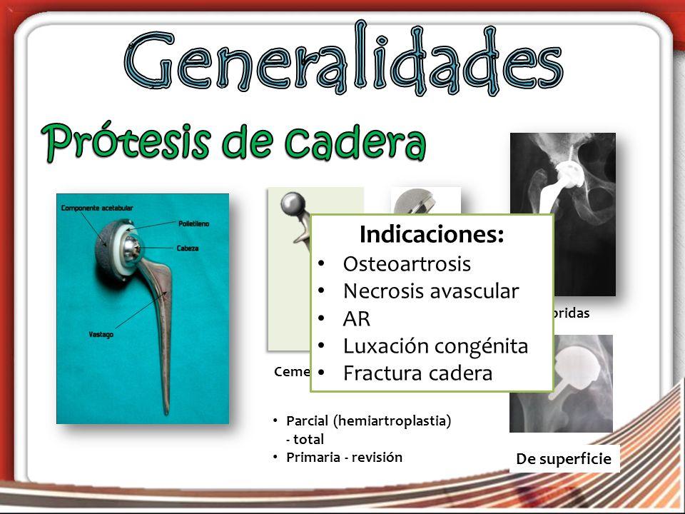 Generalidades Prótesis de cadera Indicaciones: Osteoartrosis