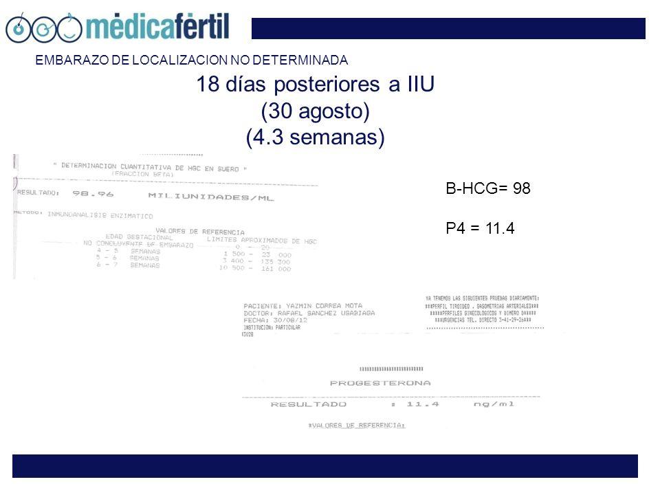 18 días posteriores a IIU (30 agosto) (4.3 semanas)
