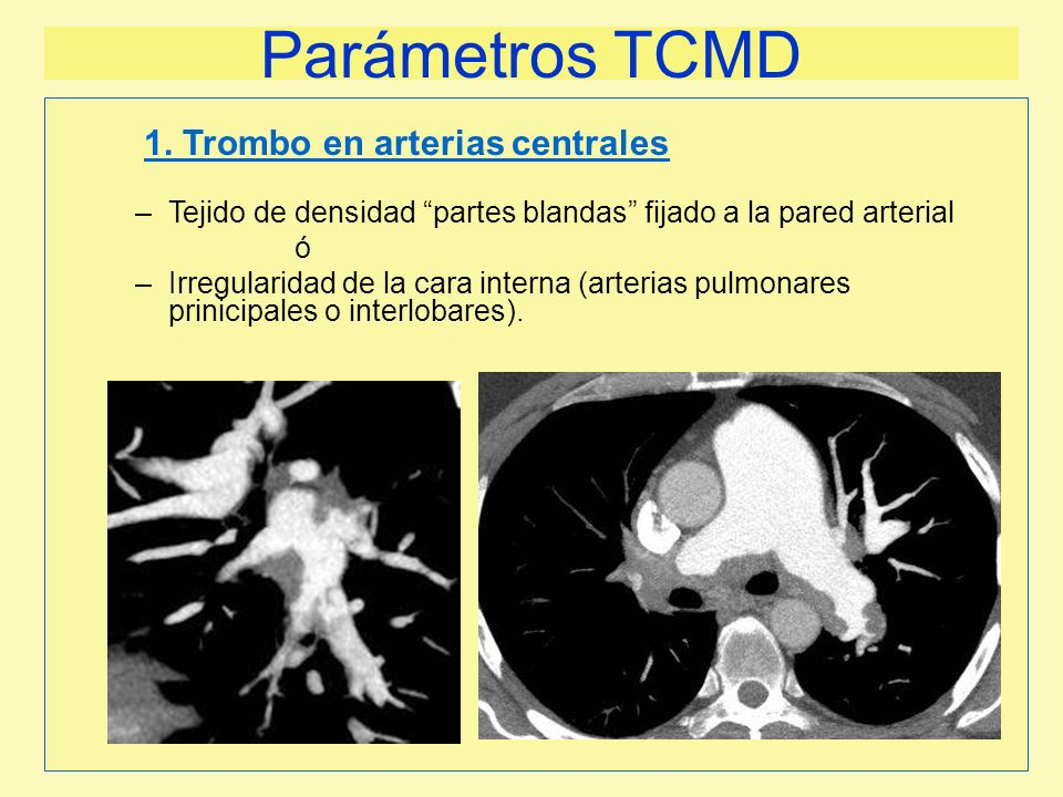 Parámetros TCMD 1. Trombo en arterias centrales