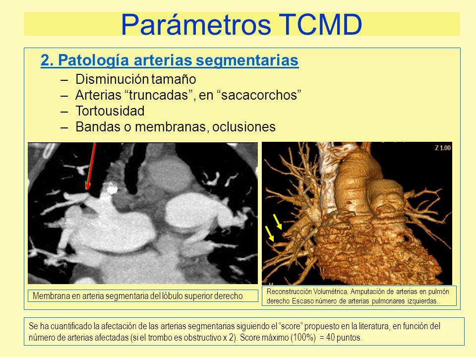 Parámetros TCMD 2. Patología arterias segmentarias Disminución tamaño