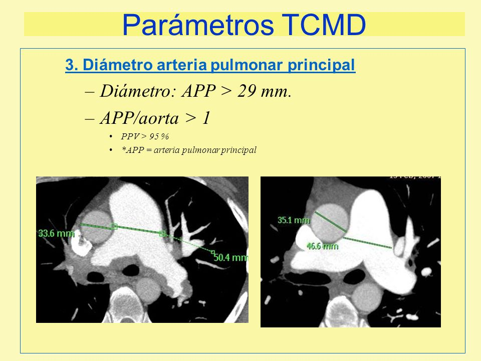 Parámetros TCMD Diámetro: APP > 29 mm. APP/aorta > 1