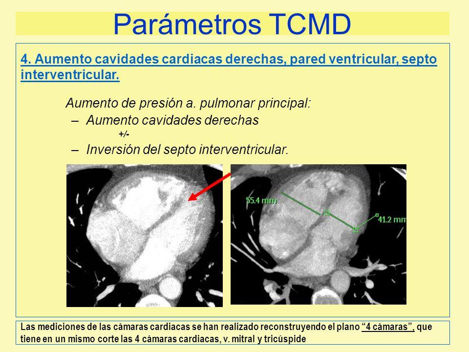 Parámetros TCMD4. Aumento cavidades cardiacas derechas, pared ventricular, septo interventricular. Aumento de presión a. pulmonar principal: