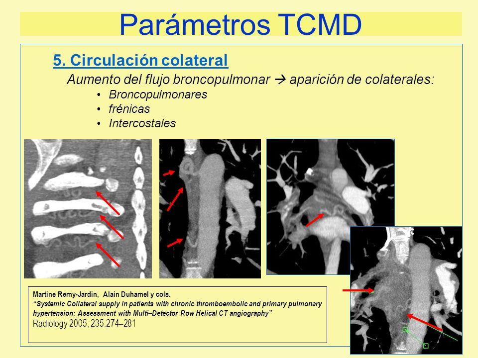 Parámetros TCMD 5. Circulación colateral
