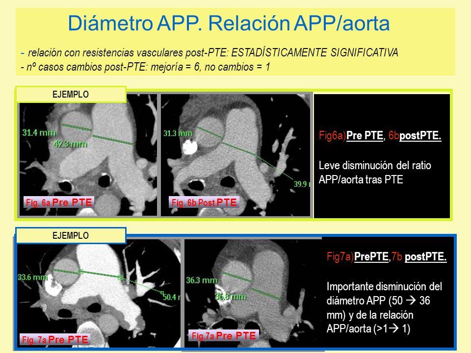 Diámetro APP. Relación APP/aorta - relación con resistencias vasculares post-PTE: ESTADÍSTICAMENTE SIGNIFICATIVA - nº casos cambios post-PTE: mejoría = 6, no cambios = 1