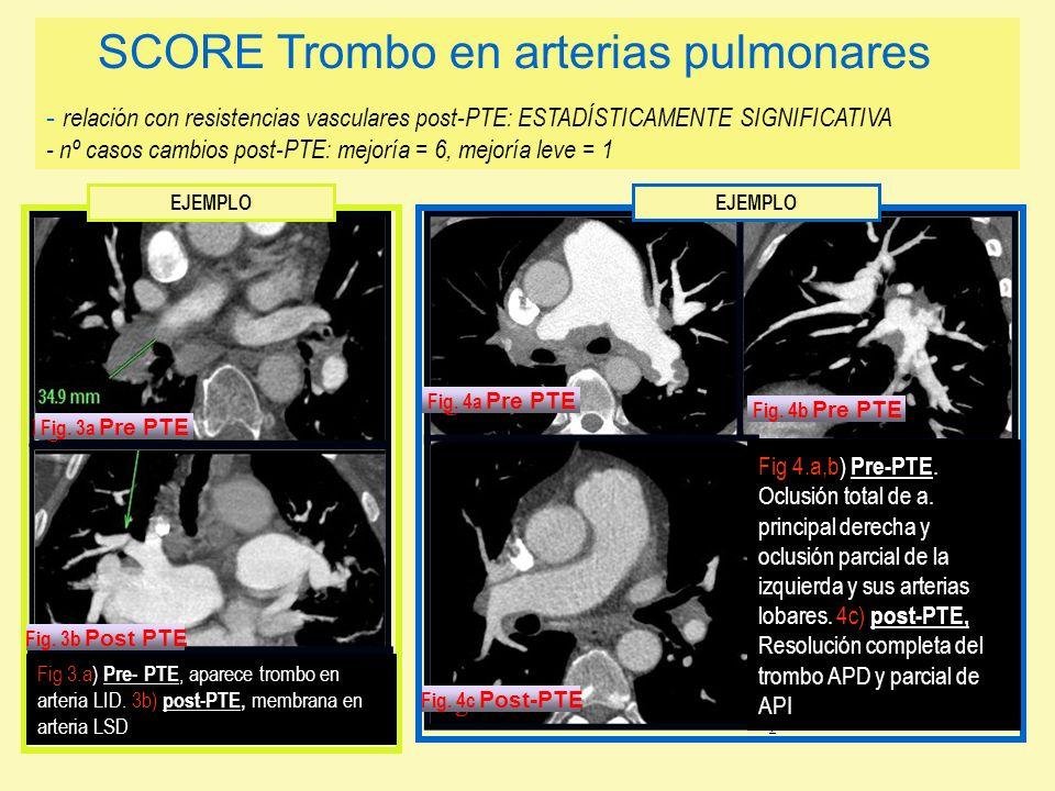 SCORE Trombo en arterias pulmonares - relación con resistencias vasculares post-PTE: ESTADÍSTICAMENTE SIGNIFICATIVA - nº casos cambios post-PTE: mejoría = 6, mejoría leve = 1
