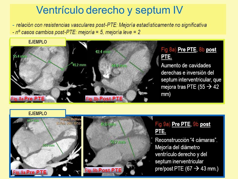 Ventrículo derecho y septum IV - relación con resistencias vasculares post-PTE: Mejoría estadísticamente no significativa - nº casos cambios post-PTE: mejoría = 5, mejoría leve = 2