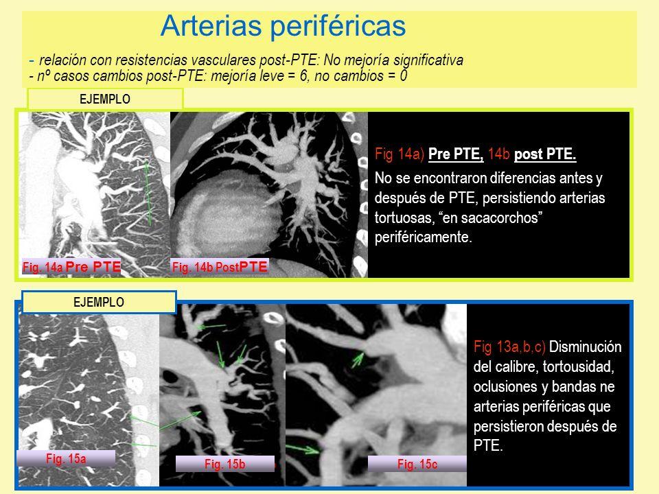 Arterias periféricas - relación con resistencias vasculares post-PTE: No mejoría significativa - nº casos cambios post-PTE: mejoría leve = 6, no cambios = 0