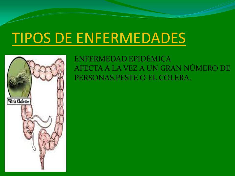 TIPOS DE ENFERMEDADES ENFERMEDAD EPIDÉMICA