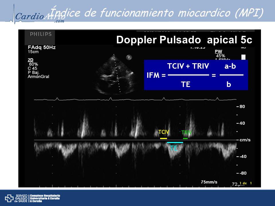 Índice de funcionamiento miocardico (MPI)