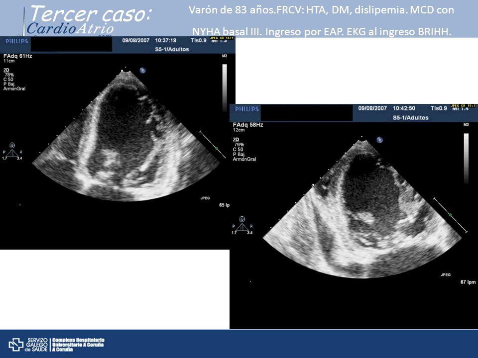 Tercer caso: Varón de 83 años.FRCV: HTA, DM, dislipemia. MCD con