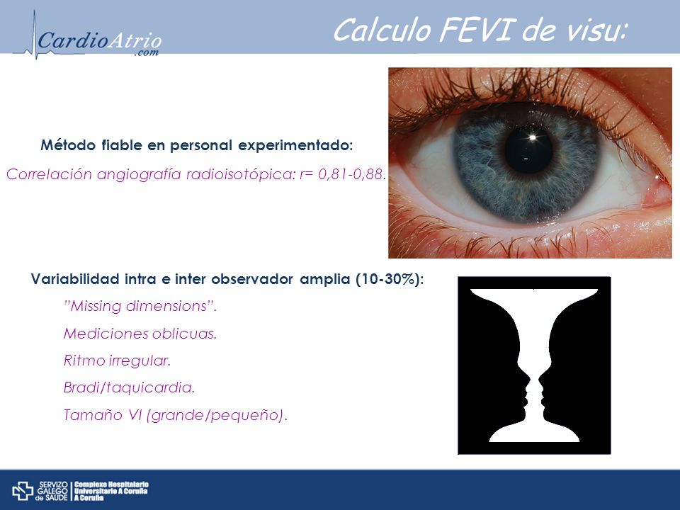 Calculo FEVI de visu: Método fiable en personal experimentado: