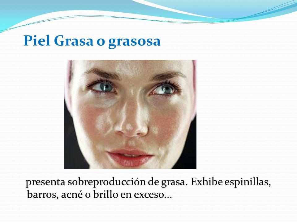 Piel Grasa o grasosa presenta sobreproducción de grasa.