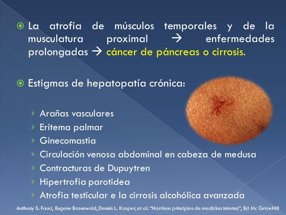 Estigmas de hepatopatía crónica: