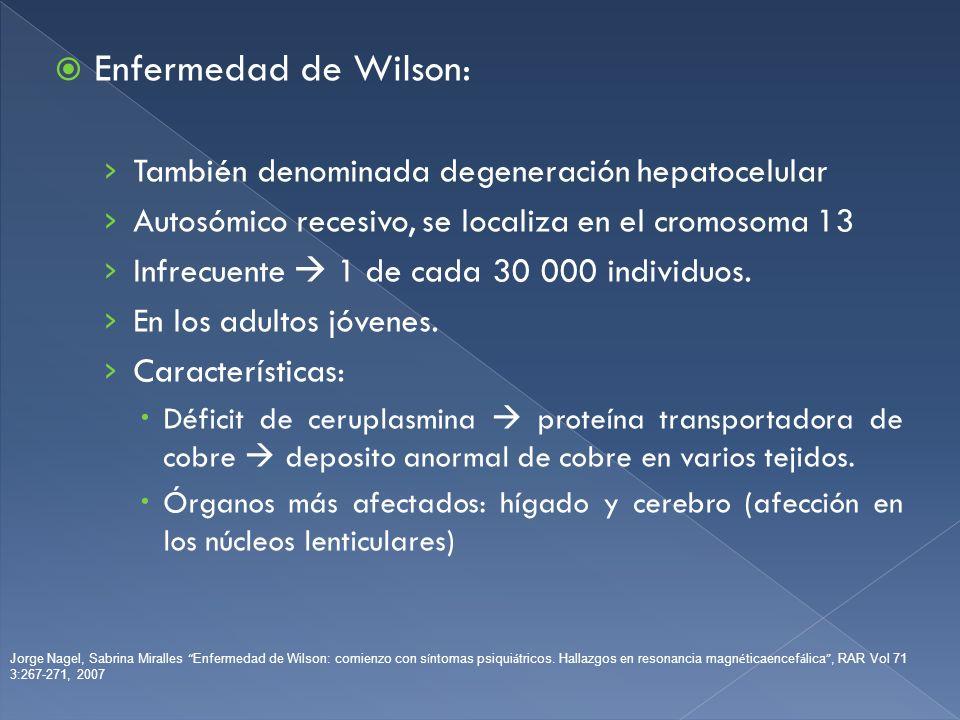 Enfermedad de Wilson: También denominada degeneración hepatocelular