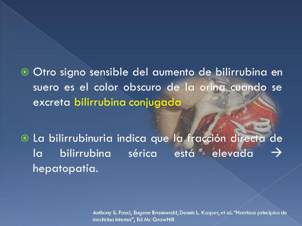 Otro signo sensible del aumento de bilirrubina en suero es el color obscuro de la orina cuando se excreta bilirrubina conjugada