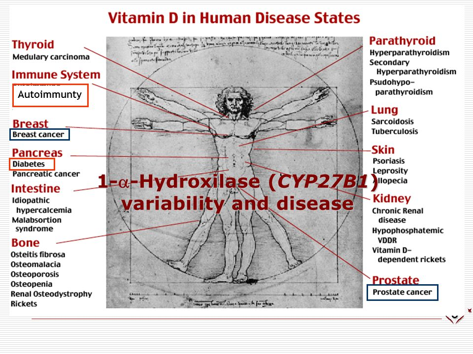 1-a-Hydroxilase (CYP27B1) variability and disease