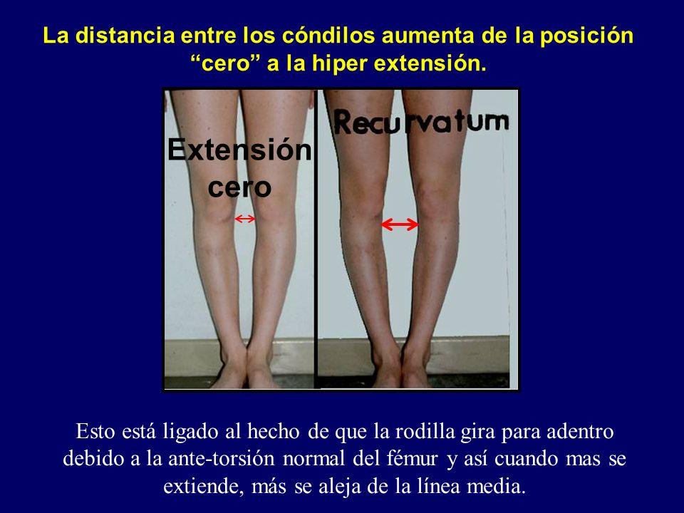 La distancia entre los cóndilos aumenta de la posición cero a la hiper extensión.
