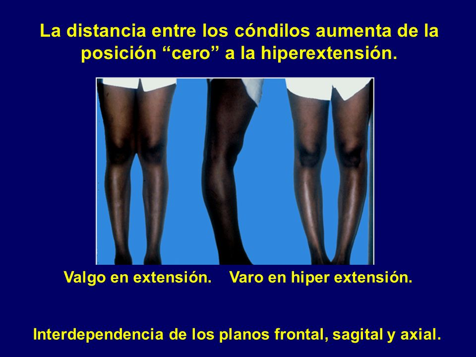 La distancia entre los cóndilos aumenta de la posición cero a la hiperextensión.