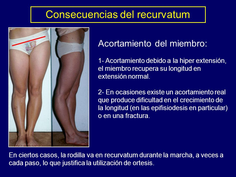 Consecuencias del recurvatum