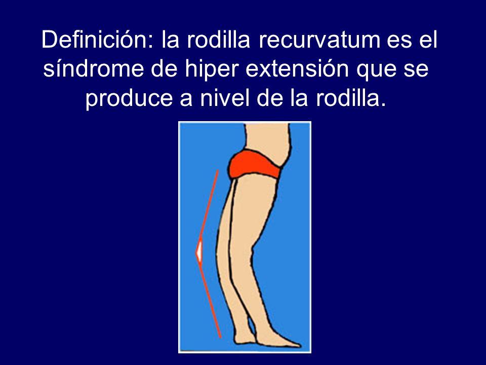 Definición: la rodilla recurvatum es el síndrome de hiper extensión que se produce a nivel de la rodilla.
