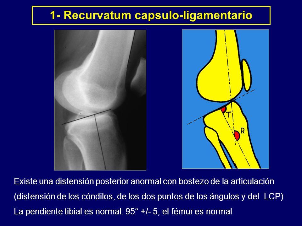 1- Recurvatum capsulo-ligamentario
