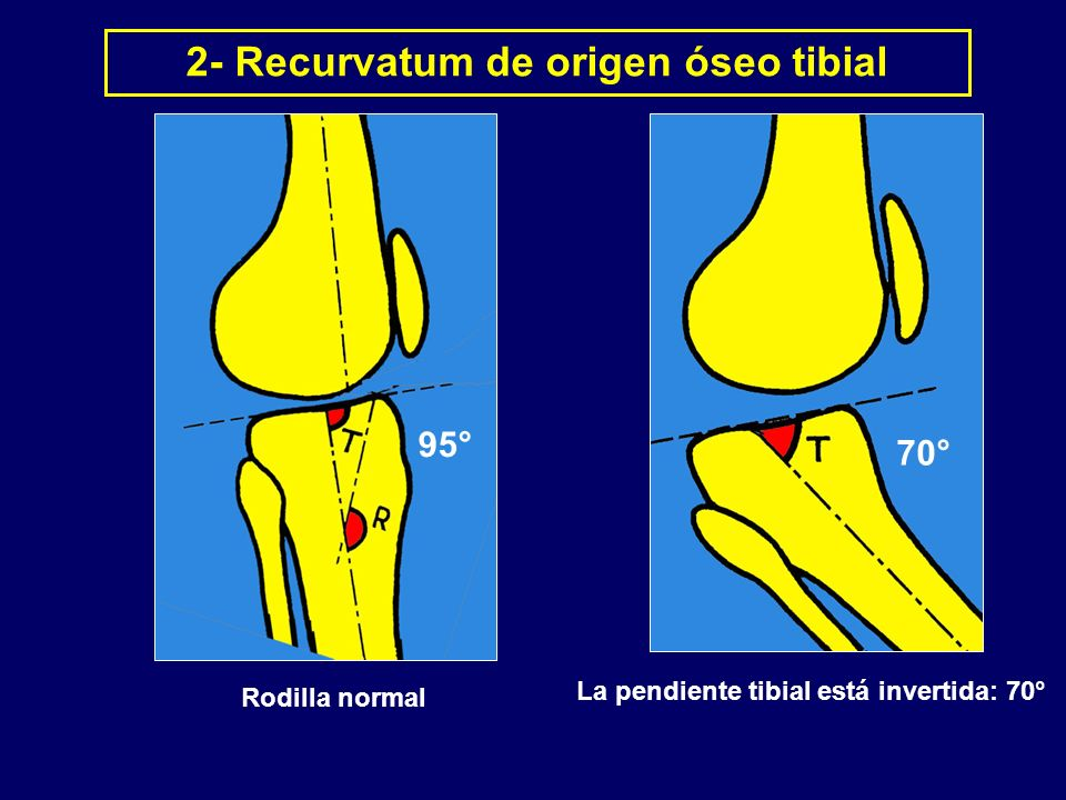 2- Recurvatum de origen óseo tibial