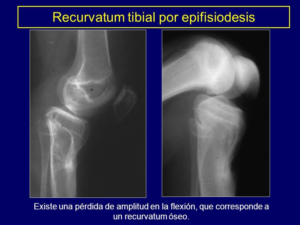 Recurvatum tibial por epifisiodesis