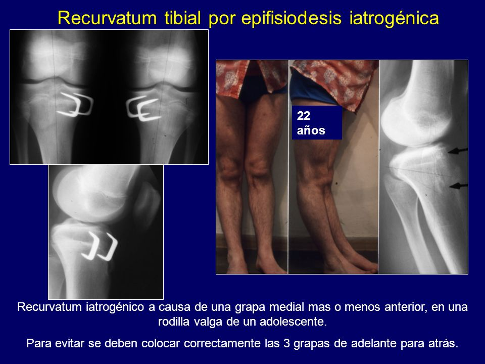 Recurvatum tibial por epifisiodesis iatrogénica