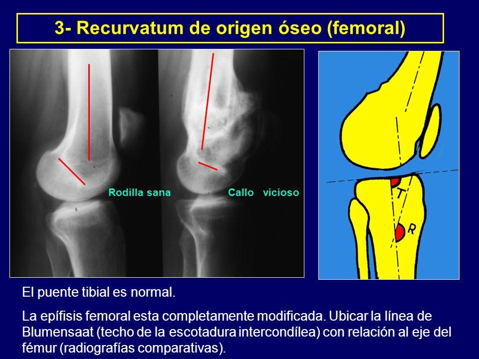 3- Recurvatum de origen óseo (femoral)