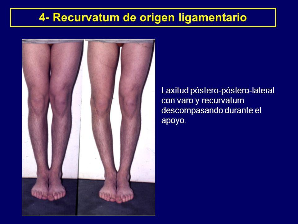 4- Recurvatum de origen ligamentario