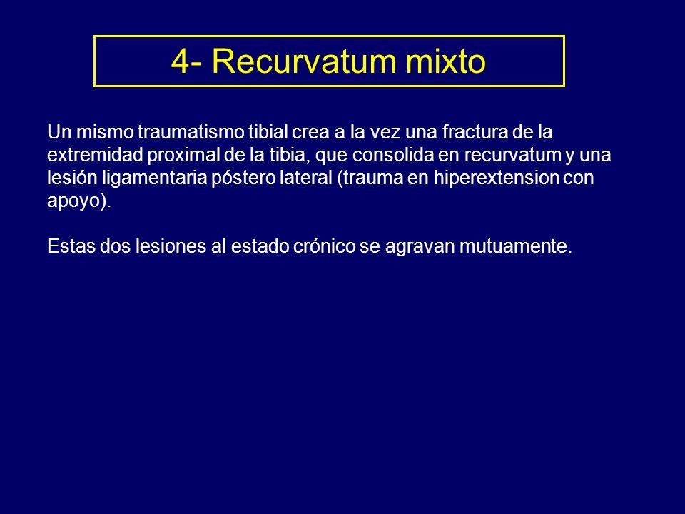 4- Recurvatum mixto