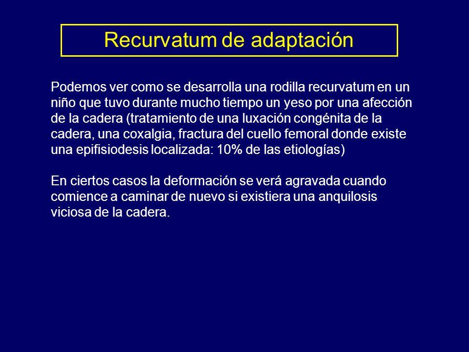 Recurvatum de adaptación