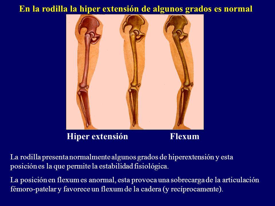 En la rodilla la hiper extensión de algunos grados es normal