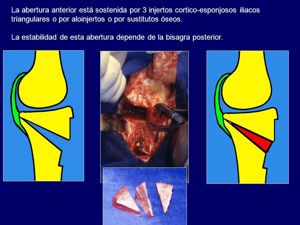 La abertura anterior está sostenida por 3 injertos cortico-esponjosos iliacos triangulares o por aloinjertos o por sustitutos óseos.