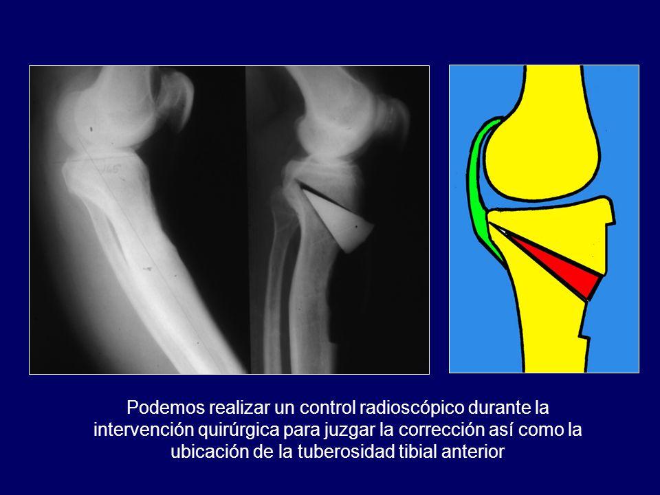 Podemos realizar un control radioscópico durante la intervención quirúrgica para juzgar la corrección así como la ubicación de la tuberosidad tibial anterior