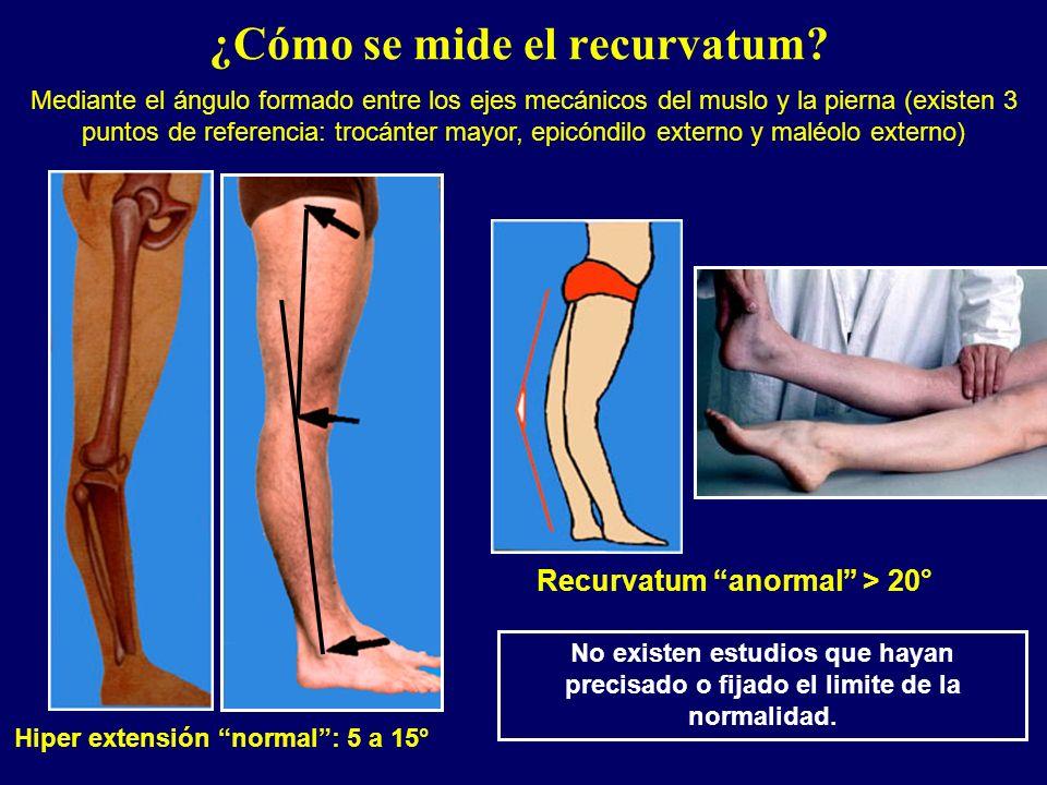 ¿Cómo se mide el recurvatum