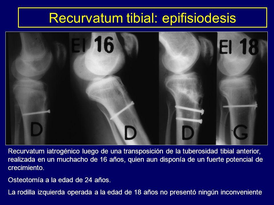 Recurvatum tibial: epifisiodesis