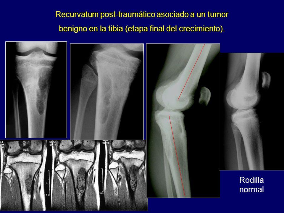 Recurvatum post-traumático asociado a un tumor