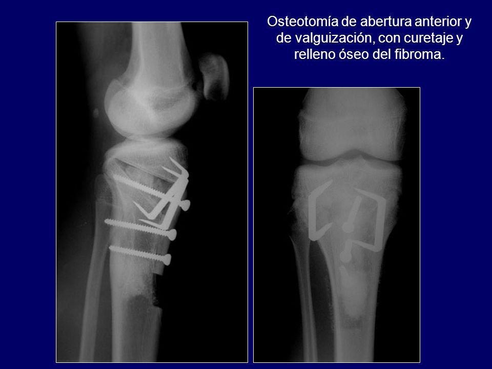 Osteotomía de abertura anterior y de valguización, con curetaje y relleno óseo del fibroma.