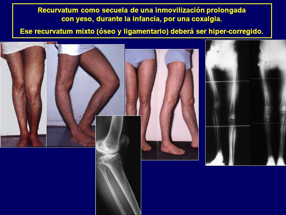 Recurvatum como secuela de una inmovilización prolongada