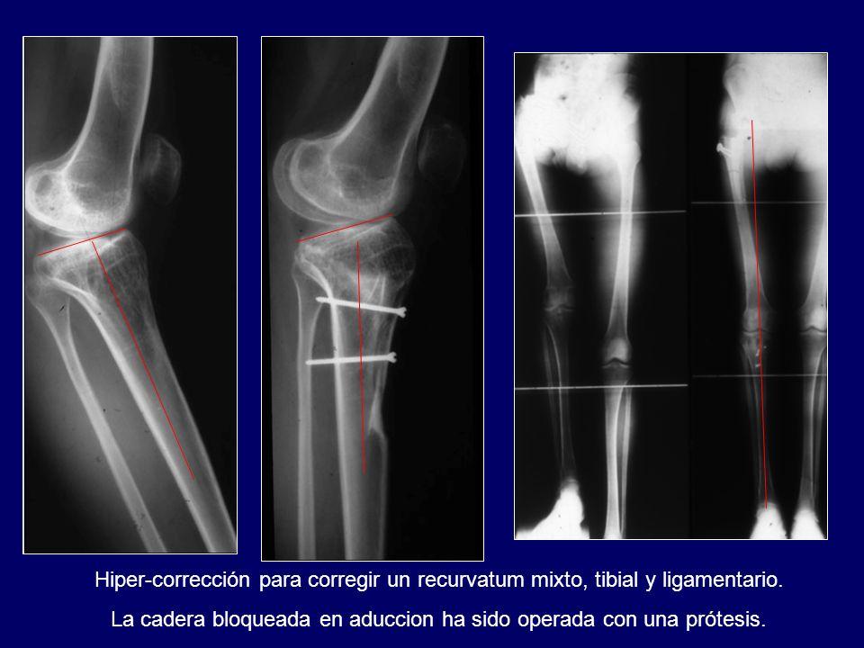 La cadera bloqueada en aduccion ha sido operada con una prótesis.