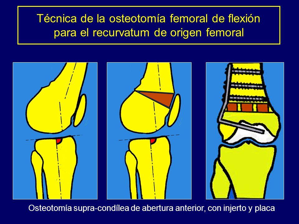 Osteotomía supra-condílea de abertura anterior, con injerto y placa