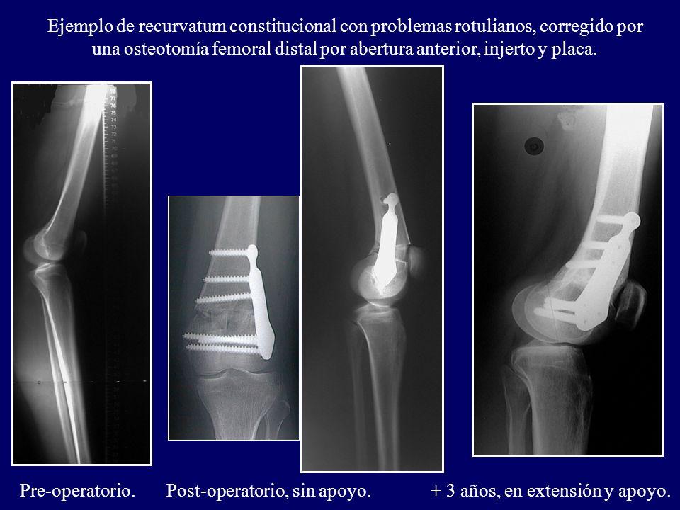 Ejemplo de recurvatum constitucional con problemas rotulianos, corregido por una osteotomía femoral distal por abertura anterior, injerto y placa.
