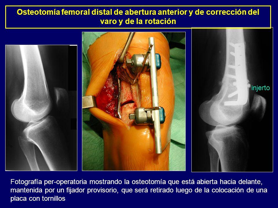 Osteotomía femoral distal de abertura anterior y de corrección del varo y de la rotación