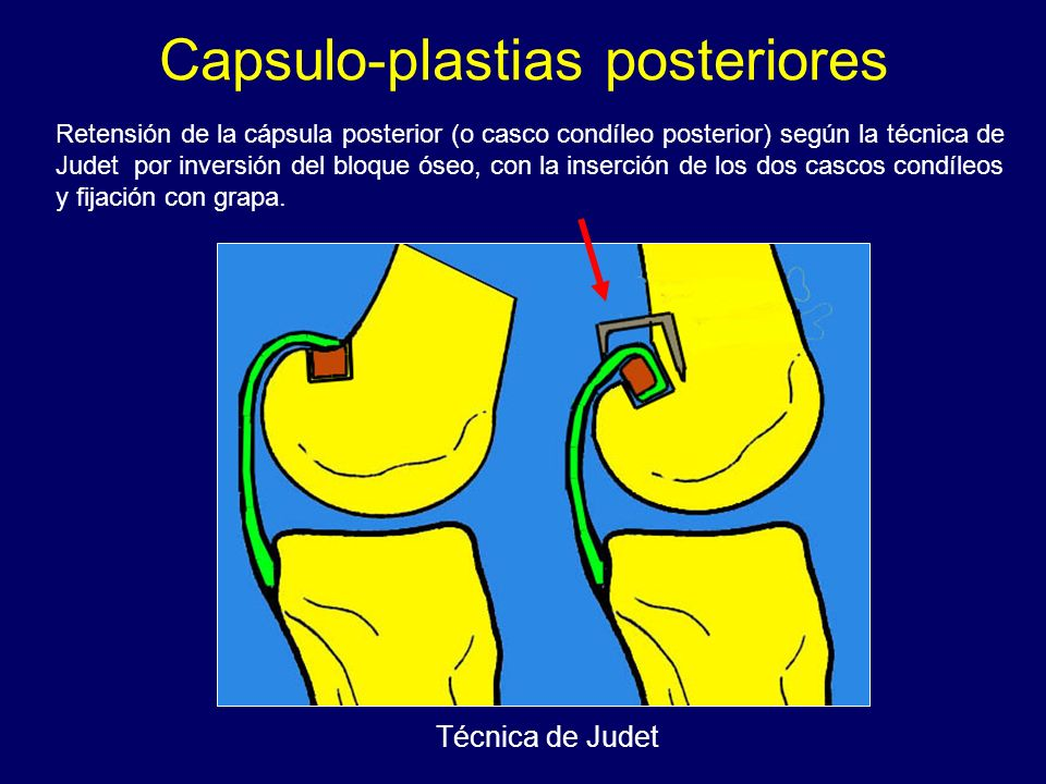 Capsulo-plastias posteriores