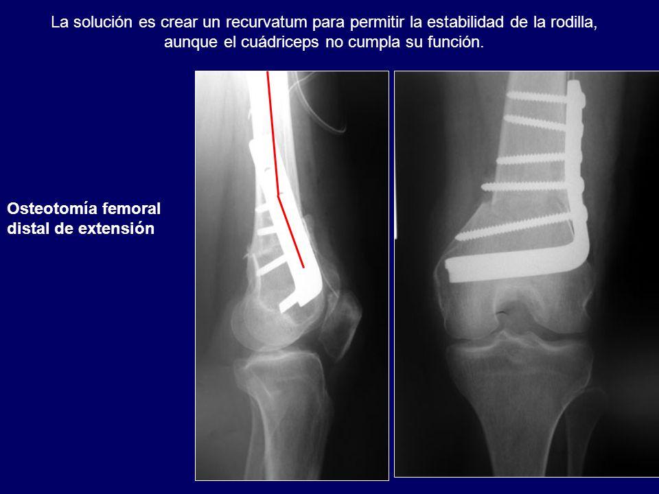 La solución es crear un recurvatum para permitir la estabilidad de la rodilla, aunque el cuádriceps no cumpla su función.