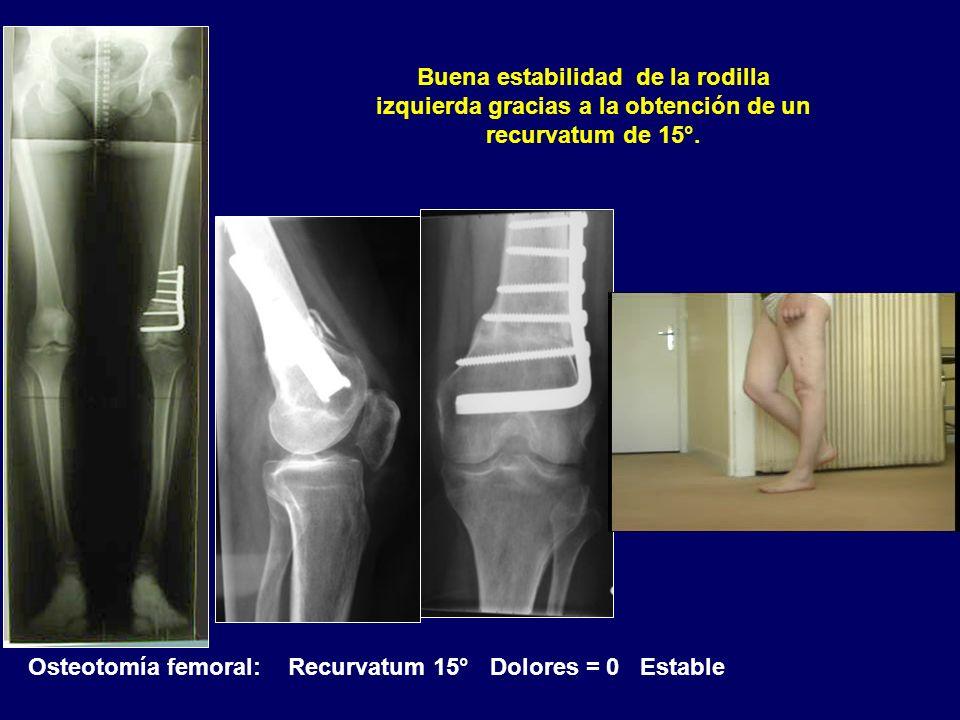 Buena estabilidad de la rodilla izquierda gracias a la obtención de un recurvatum de 15°.