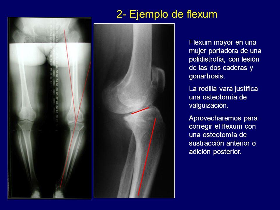 2- Ejemplo de flexum v. Flexum mayor en una mujer portadora de una polidistrofia, con lesión de las dos caderas y gonartrosis.
