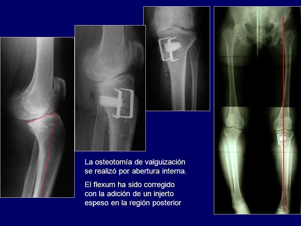 La osteotomía de valguización se realizó por abertura interna.