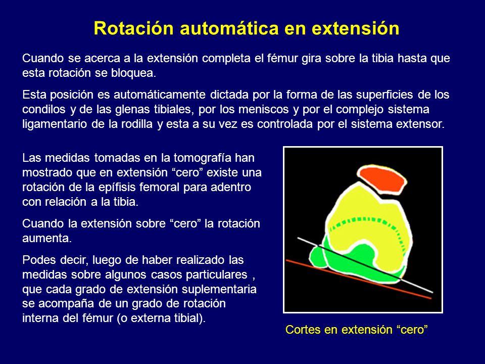 Rotación automática en extensión